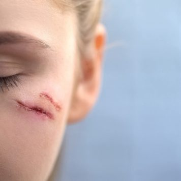 Scarring and Disfigurement Lawsuits